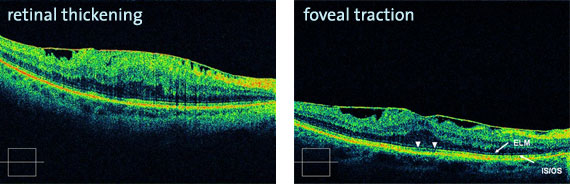 Epiretinal membranes in the macular (center of the retinal) foveal traction