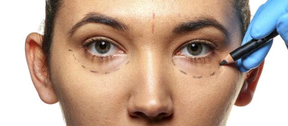 Ästhetische Chirurgie Augen Lider, OP