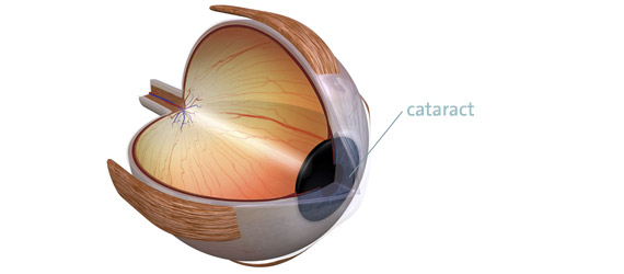 cataract eye surgery Vienna