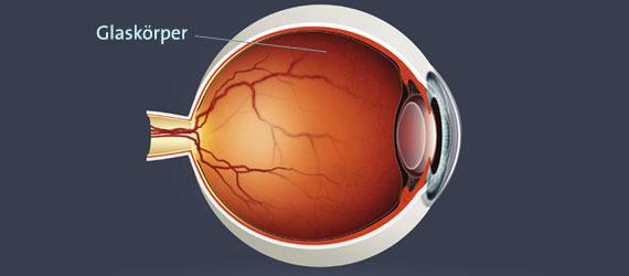 Glaskörper Erklärung Auge
