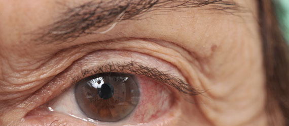 Dermatochalasis (age-related sagging of the eyelids)