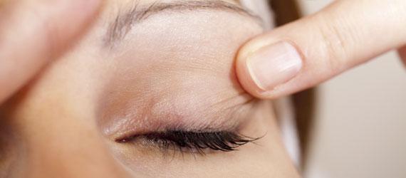 eyelid problems blepharoplasty