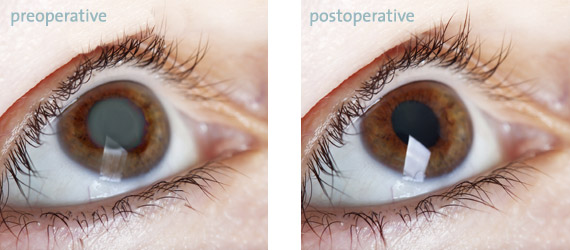 Cataracts (before and after surgery, sim.) preoperative, postoperative